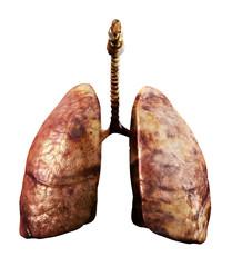 Pneumonoultramicroscopicsilicovolcanoconiosis Silicosis Black Lung Disease
